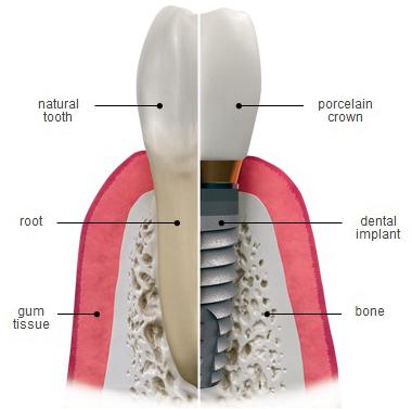 bio-implants