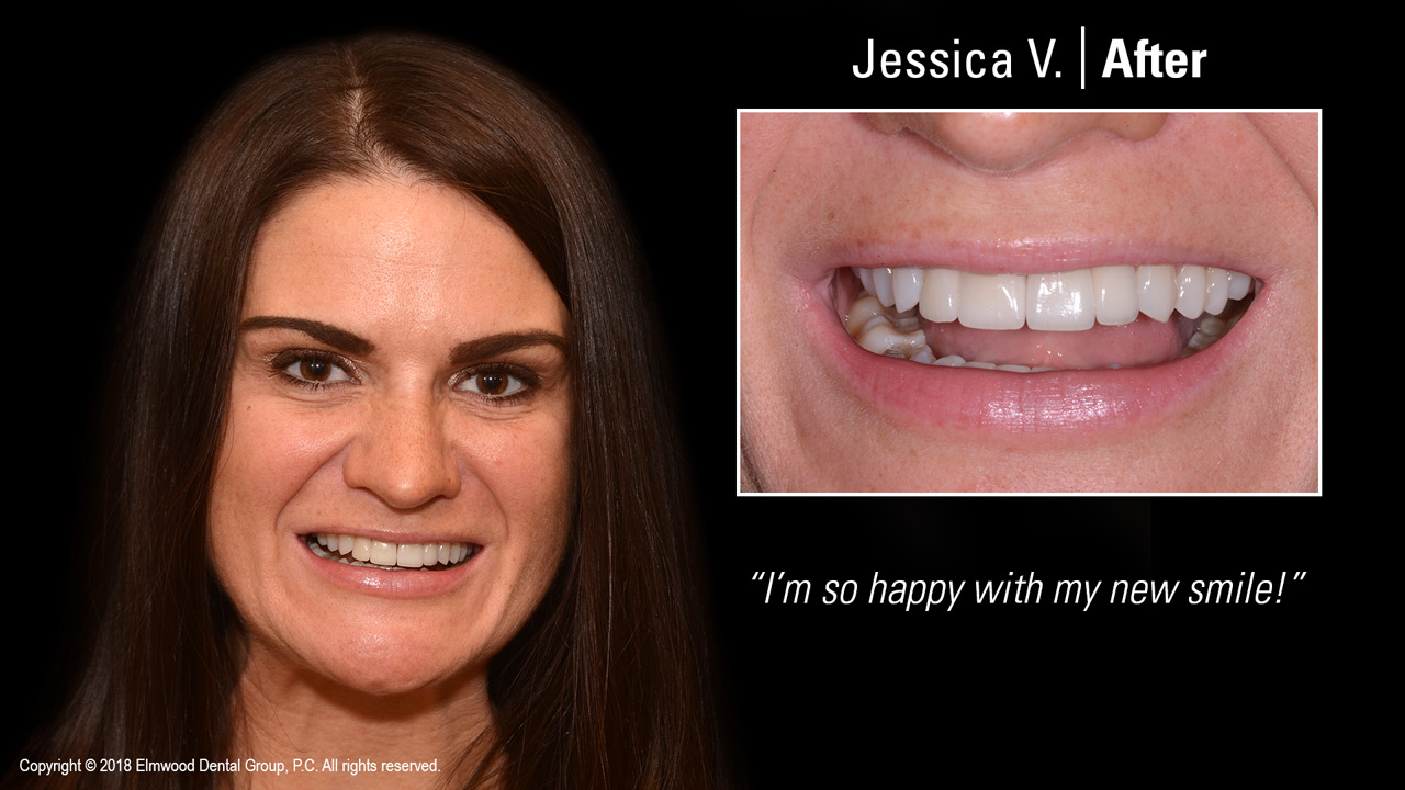 Smile-Gallery_Cosmetic-Dentistry_JessicaV_After