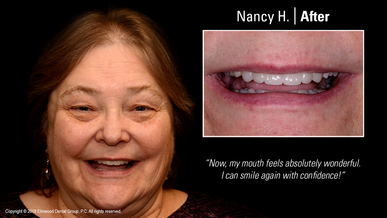 Smile-Gallery_Cosmetic-Dentistry_NancyH_After