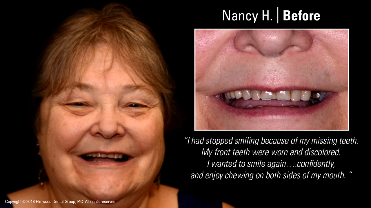 Smile-Gallery_Cosmetic-Dentistry_NancyH_Before