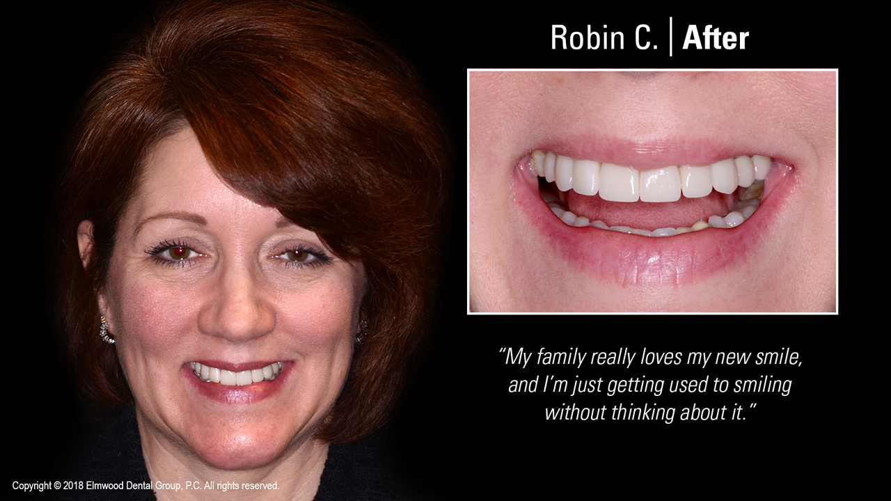 Smile-Gallery_Cosmetic-Dentistry_RobinC_After