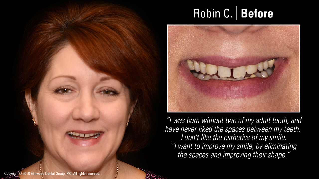 Smile-Gallery_Cosmetic-Dentistry_RobinC_Before