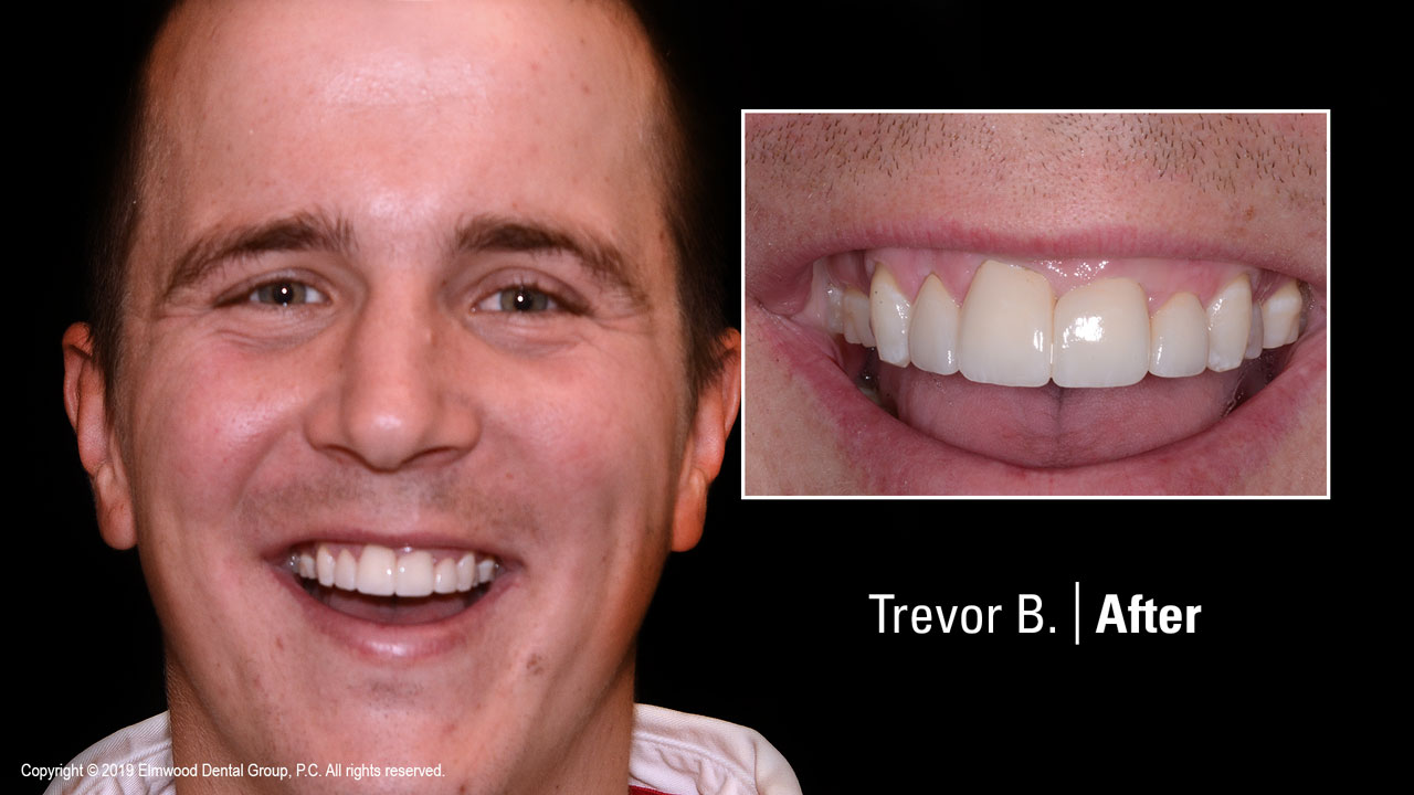 Smile-Gallery_Cosmetic-Dentistry_TrevorB_After