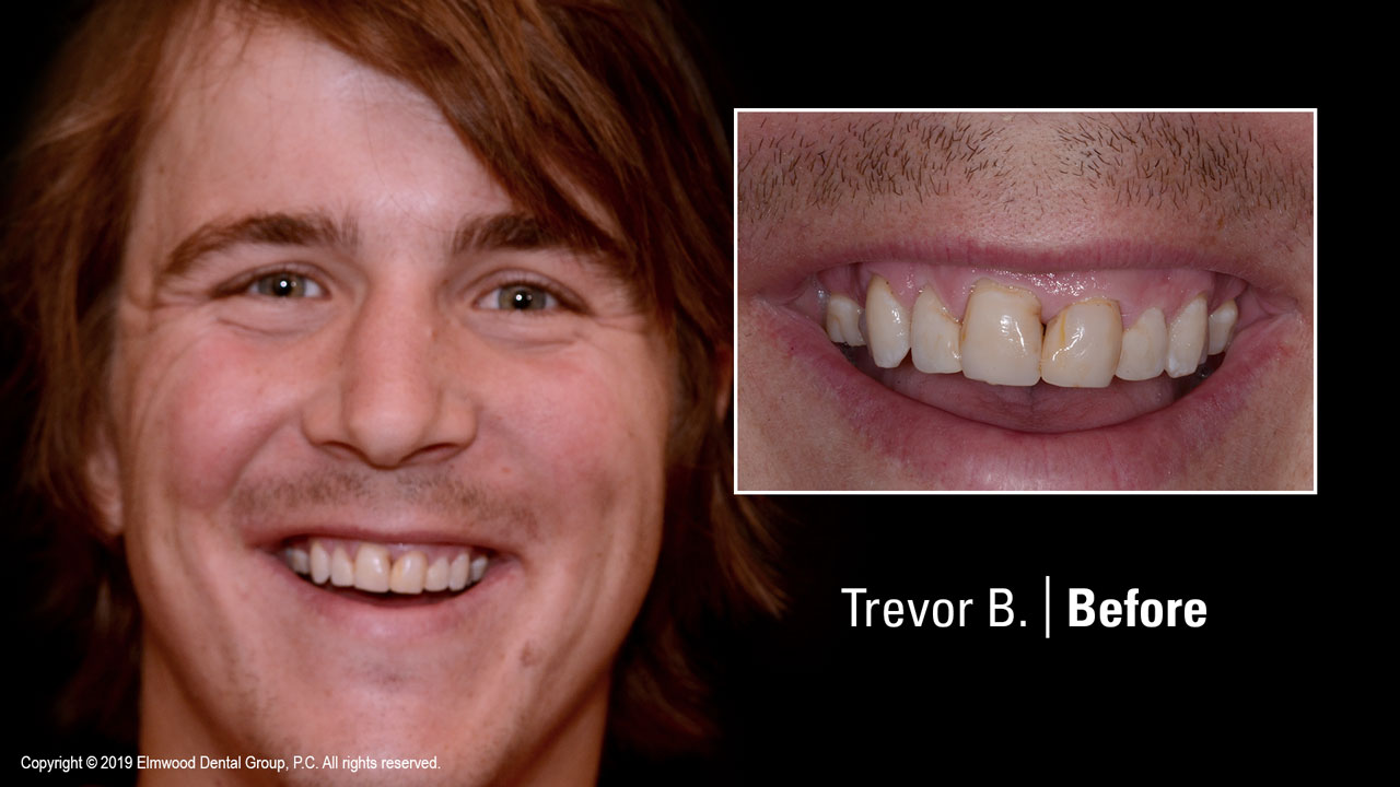 Smile-Gallery_Cosmetic-Dentistry_TrevorB_Before