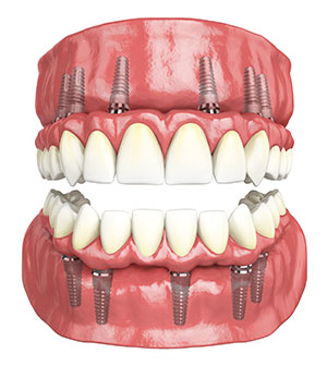 3 Tooth Dental Implant Bridge