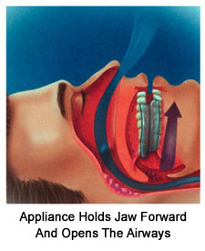 Snoring Appliance Diagram