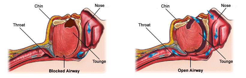 Snoring & Sleep Apnea Diagram