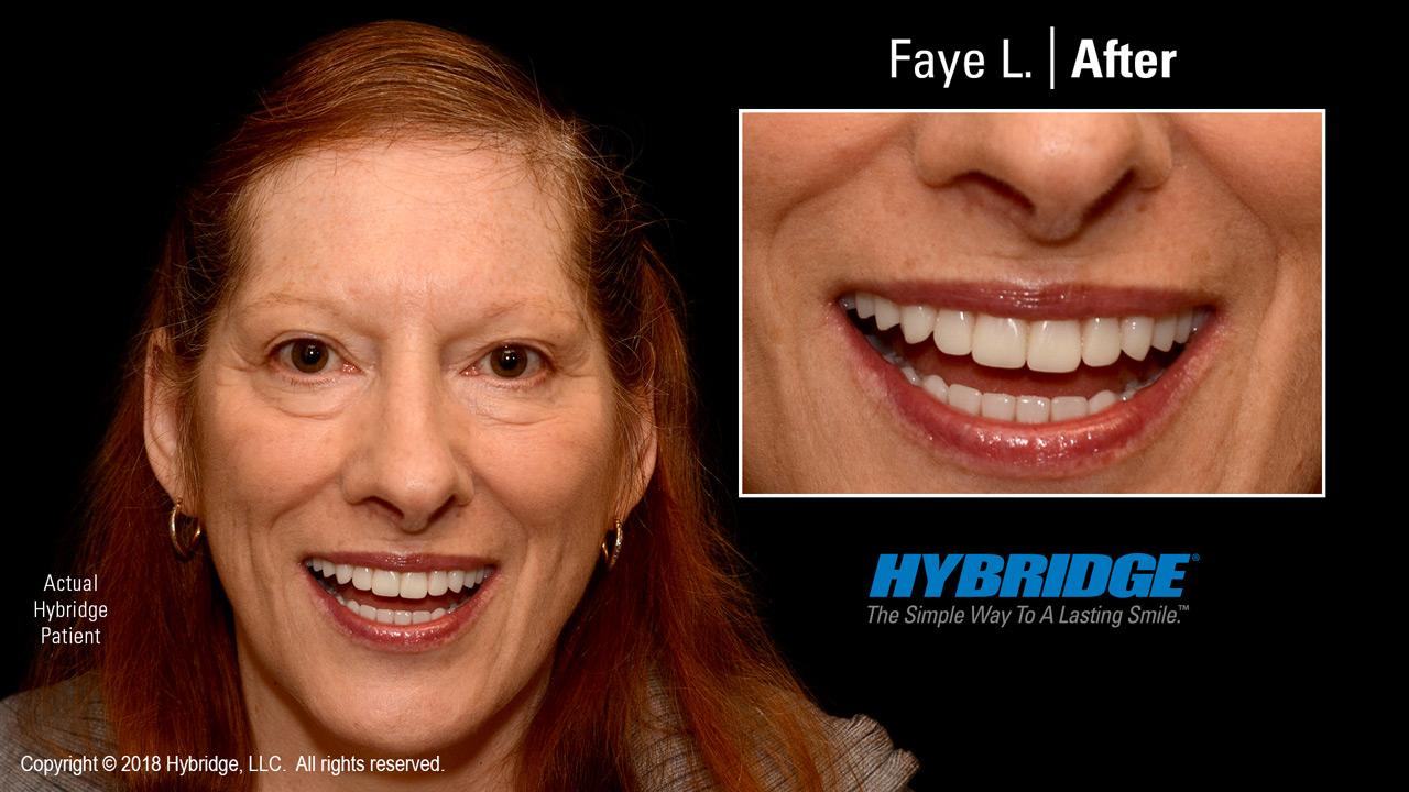 Hybridge_Faye_L_After