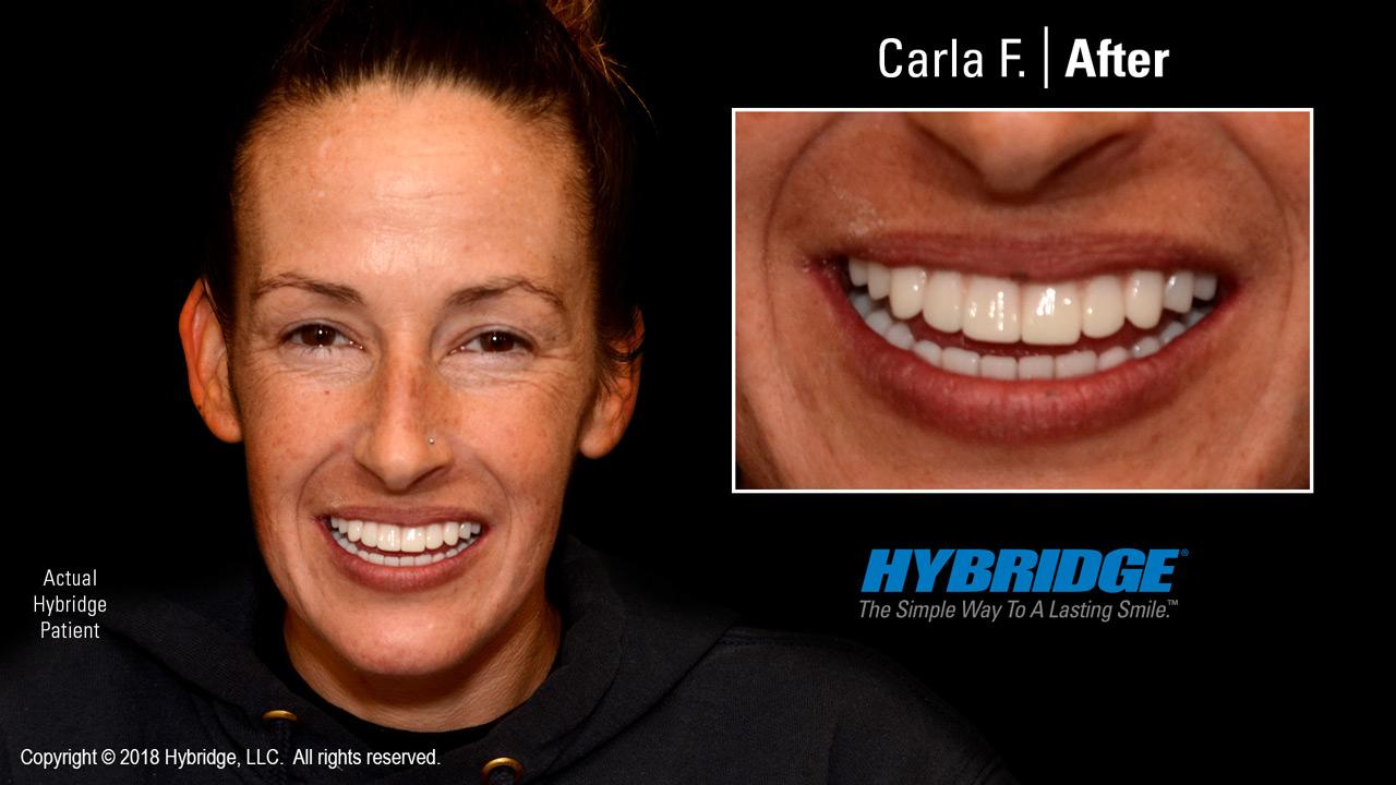 Hybridge_Carla_F_After