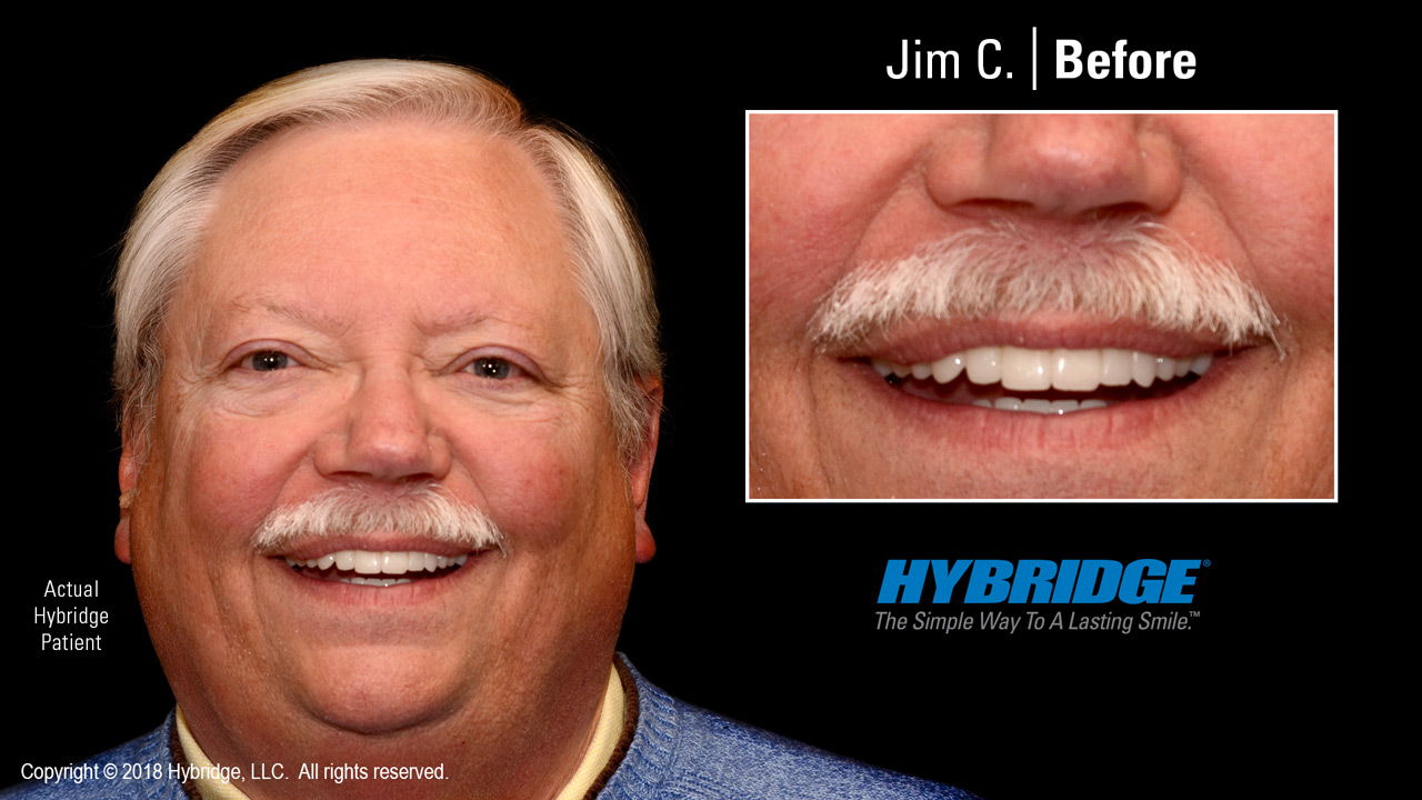Hybridge_Jim_C_After