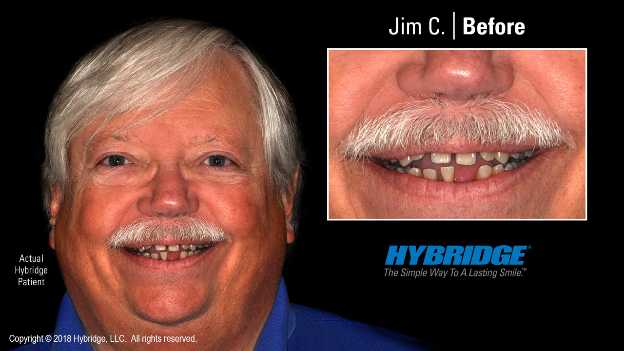Hybridge_Jim_C_Before